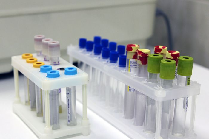 Ревмопробы (анализ крови)