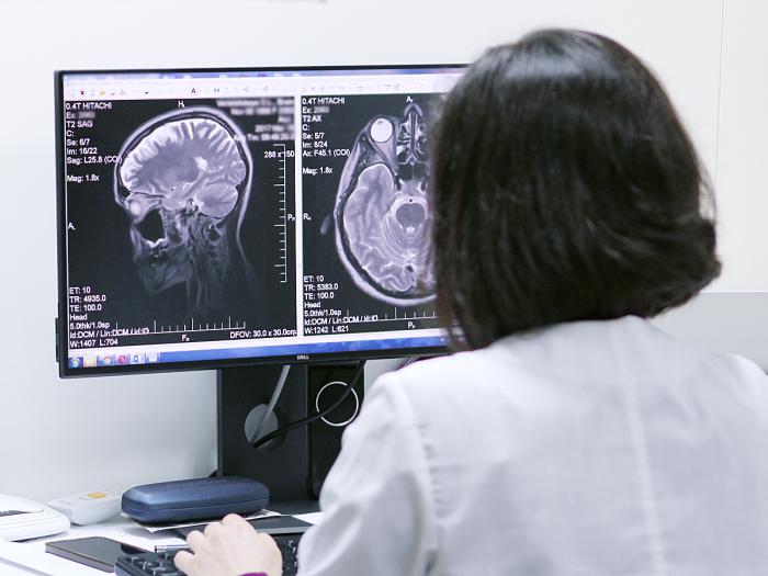 Детальніше: МРТ головного мозку, комп'ютерна томографія